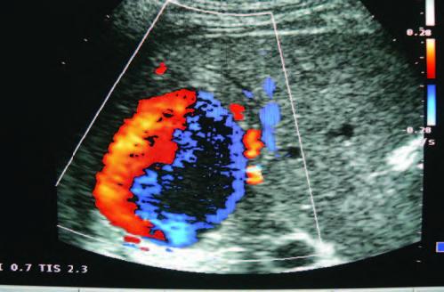 Hemobilia secundaria a pseudoaneurisma de la arteria hepática