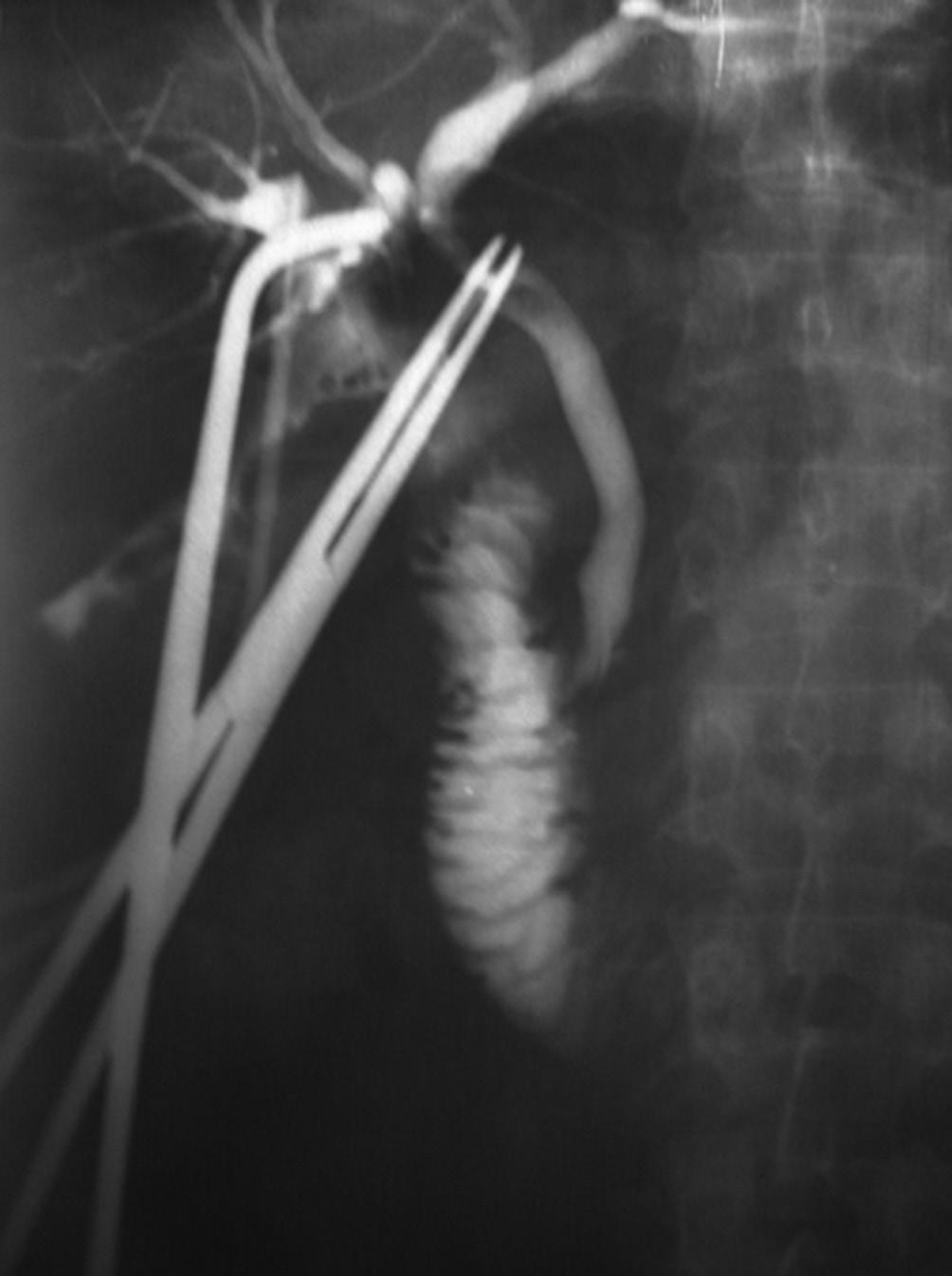 Lesión quirúrgica de la vía biliar de la variante anatómica de la ...