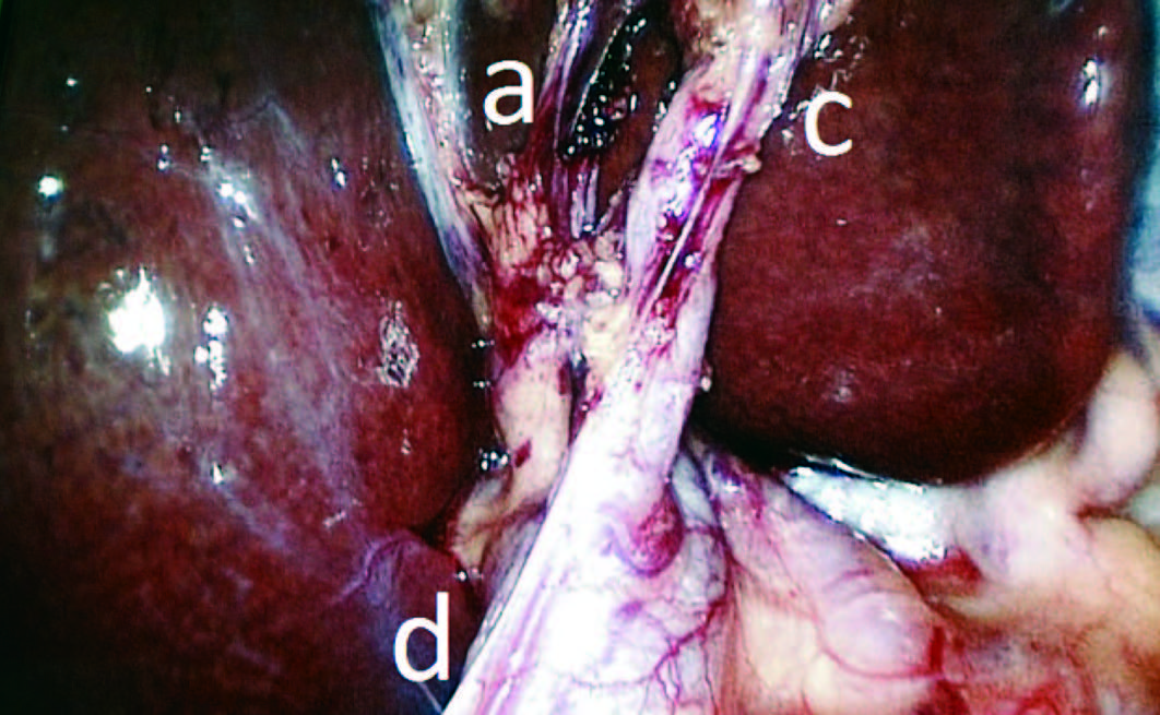 Colangiografía intraoperatoria selectiva y lesión de la vía biliar ...