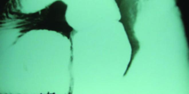 Dilatacion aguda del estomago sintomas