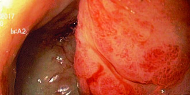 Gastritis antral no erosiva significado